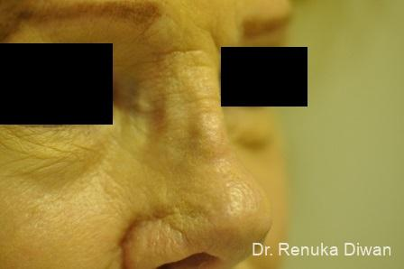Non-Surgical Rhinoplasty: Patient 1 - Before and After Image 4