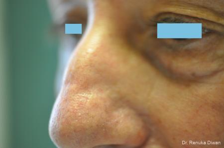 Laser For Veins And Redness For Men: Patient 8 - After Image 1