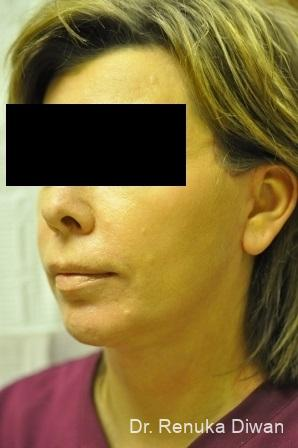 Chin Augmentation: Patient 1 - After Image