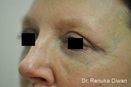 Blepharoplasty: Patient 9 - After Image 2
