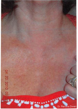 Lasers For Brown Spots: Patient 2 - After Image