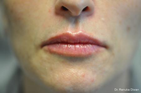 Lip Augmentation: Patient 15 - After Image 1