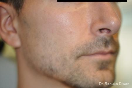 Jawline Augmentation: Patient 1 - Before and After Image 3