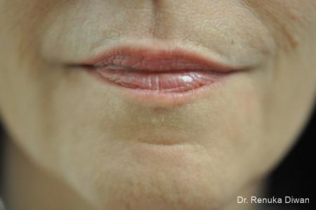 Lip Augmentation: Patient 6 - Before Image 1