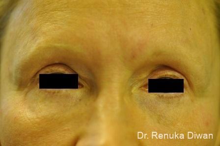 Blepharoplasty: Patient 8 - After Image 1