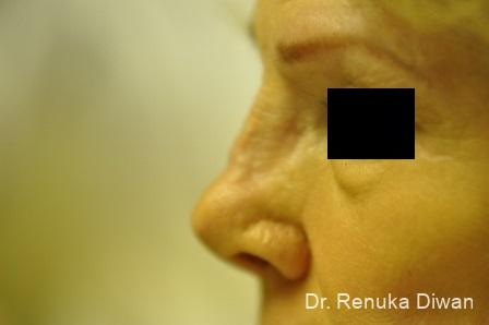 Non-Surgical Rhinoplasty: Patient 1 - Before Image 2