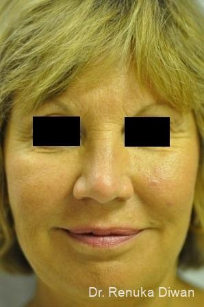 Loss Of Fullness: Patient 9 - After Image