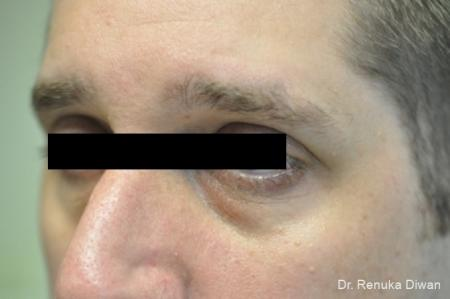 Dark Circles: Patient 1 - Before and After Image 3