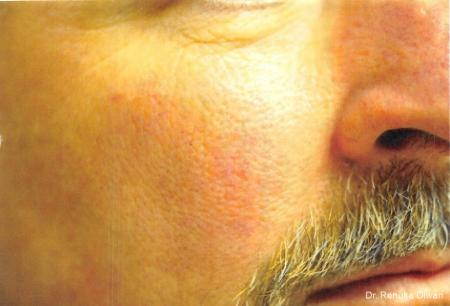 Laser-for-veins-and-redness-for-men: Patient 4 - After Image