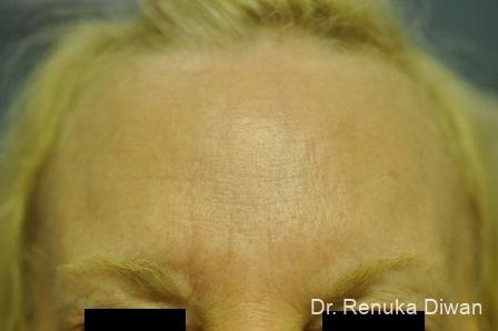 Forehead Creases: Patient 4 - After Image 1