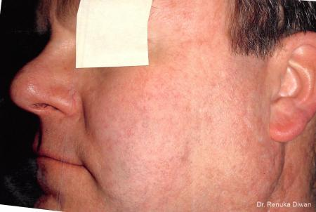 Laser For Veins And Redness For Men: Patient 3 - After Image 1
