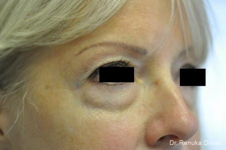Blepharoplasty: Patient 10 - Before Image 1