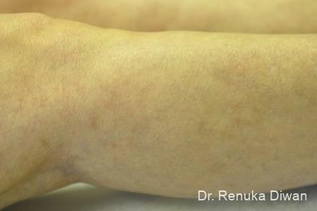 Veins On Legs: Patient 4 - After Image 2