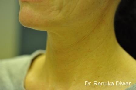 Neck Creases: Patient 3 - Before Image