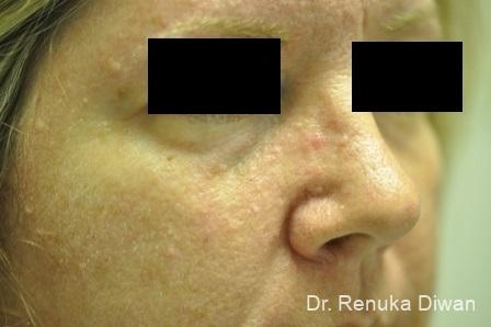 Laser For Veins And Redness: Patient 17 - After Image 1