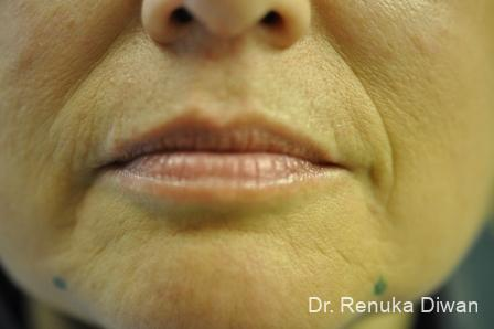 BOTOX® Cosmetic: Patient 24 - Before Image 1