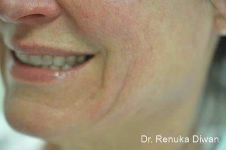 Smile Lines: Patient 9 - Before Image 1