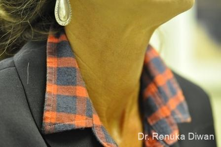 Neck Creases: Patient 2 - After Image 1
