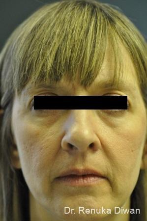Dark Circles: Patient 19 - Before Image 1