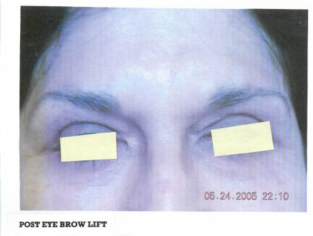 Brow Lift: Patient 1 - After Image 1