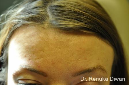 Laser Skin Resurfacing: Patient 4 - Before Image