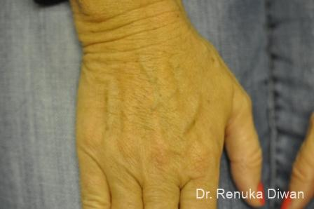 Lasers For Brown Spots: Patient 8 - Before Image