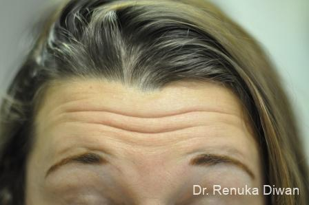 Forehead Creases: Patient 7 - Before Image