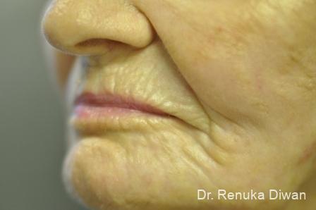 Laser Skin Resurfacing - Face: Patient 11 - After Image 2