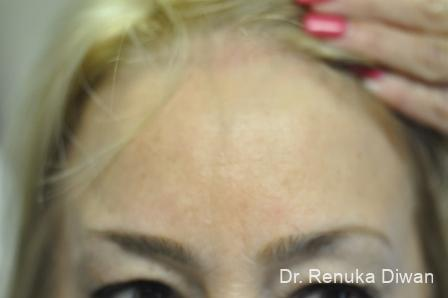 BOTOX® Cosmetic: Patient 7 - After Image