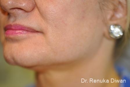 Jawline Augmentation: Patient 4 - After Image