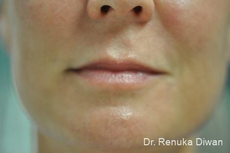 Lip Augmentation: Patient 13 - After Image 1