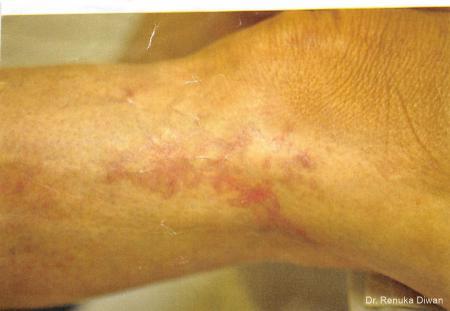 Scar Revision: Patient 1 - Before Image
