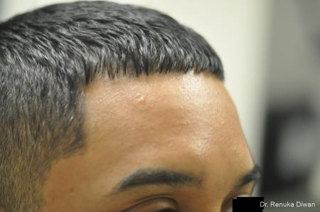 Acne Scars For Men: Patient 1 - After Image 1