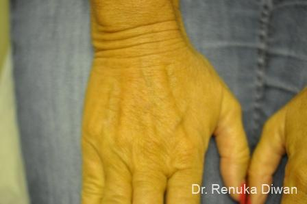 Lasers For Brown Spots: Patient 8 - After Image 1