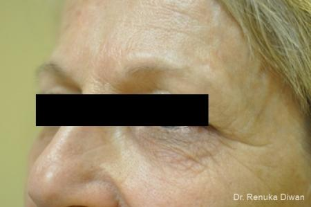Microneedling: Patient 1 - After Image 1