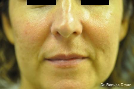 Laser For Veins And Redness: Patient 11 - After Image 1