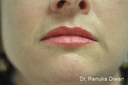 Lip Augmentation: Patient 2 - After Image