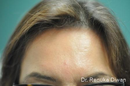Forehead Creases: Patient 8 - After Image