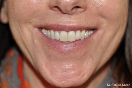 Gummy Smile: Patient 1 - After Image