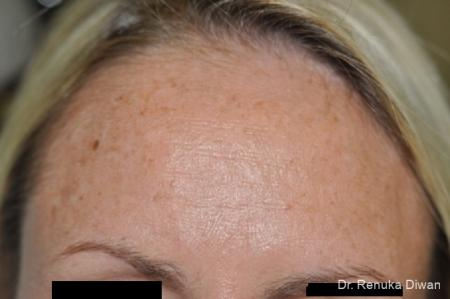 Lasers For Brown Spots: Patient 11 - Before Image 1