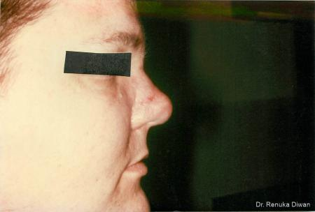 Lasers For Rhinophyma: Patient 3 - After Image 1