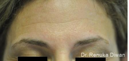 BOTOX® Cosmetic: Patient 20 - Before and After Image 2