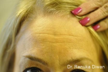 BOTOX® Cosmetic: Patient 7 - Before Image