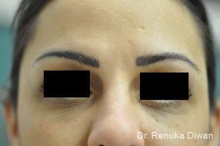 Dark Circles: Patient 13 - After Image 1