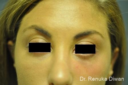 Dark Circles: Patient 5 - After Image