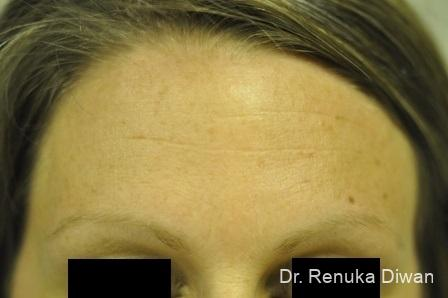 Forehead Creases: Patient 1 - After Image 1