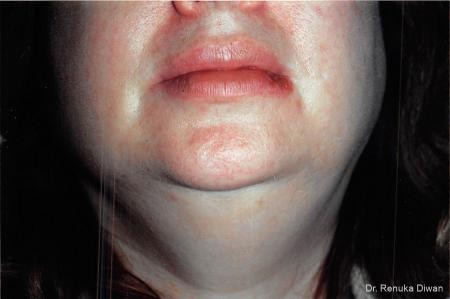 Laser For Veins And Redness: Patient 21 - After Image 1