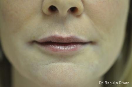 Lip Augmentation: Patient 8 - After Image