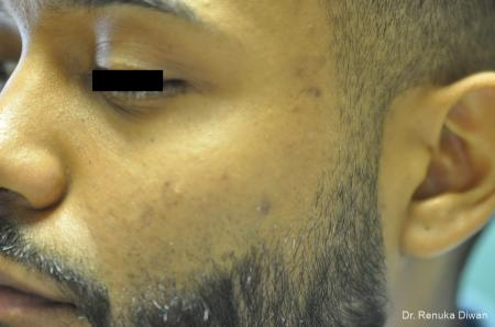 Acne Scars For Men: Patient 1 - Before and After Image 2