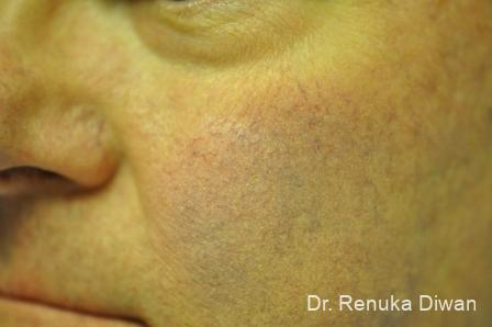 Laser-for-veins-and-redness-for-men: Patient 1 - Before Image